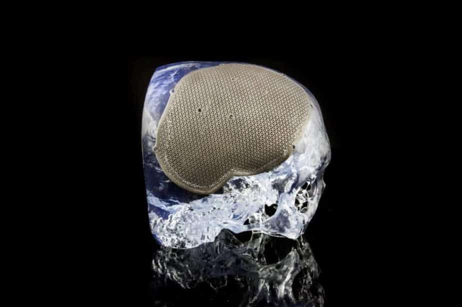 3D printed skull defect Materialise