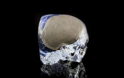 Ideas to Implementation: What Is A Typical 3D printing Digital Workflow For Pre-surgical Application