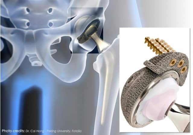 """The Making Of A Medical Metal Implant Using 3D Printing: From """"black"""" to """"grey metal powder"""" magic of 3Dprinting"""