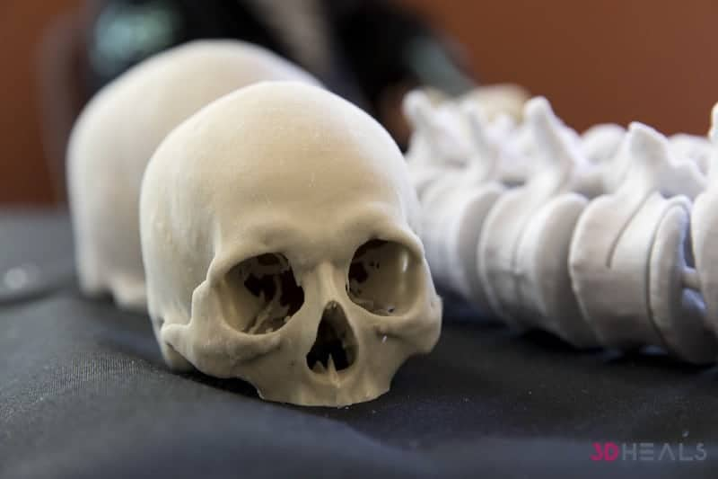 Medtech 3D printing: From a San Francisco happening to a legal limbo