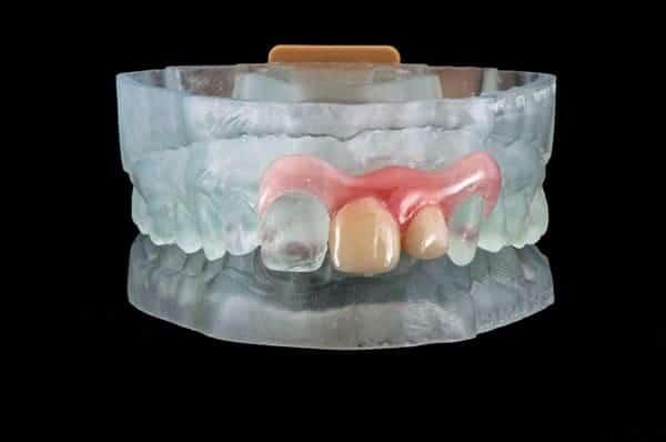 Valplast Arfona 3D Printed dentures
