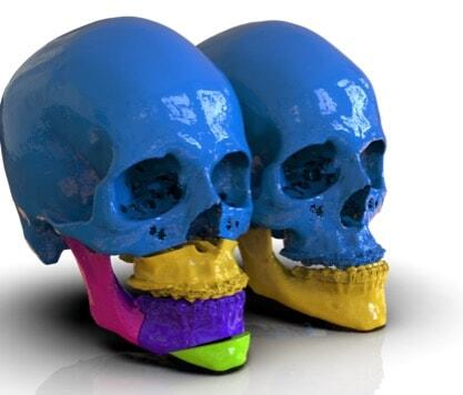 Tactical Issues of 3D Printing in Hospitals