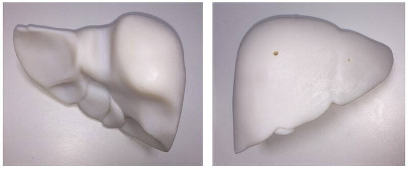 Figure 2: 3D Printed Liver Phantom in Polymer