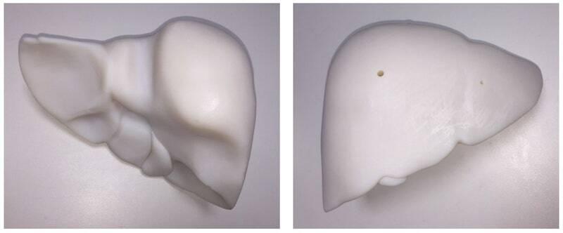 Figure 2: 3D Printed Liver Phantom in Polymer