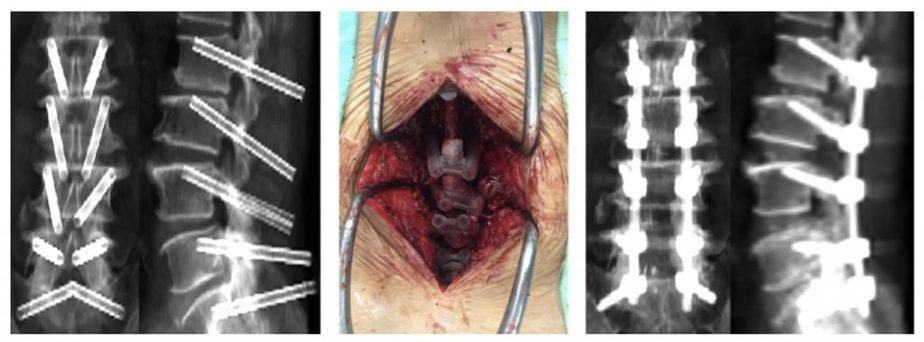 Smart Spine Surgery-from planning to 3D printed templates